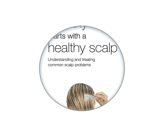 Image of the site on the healthy scalp patient brochure